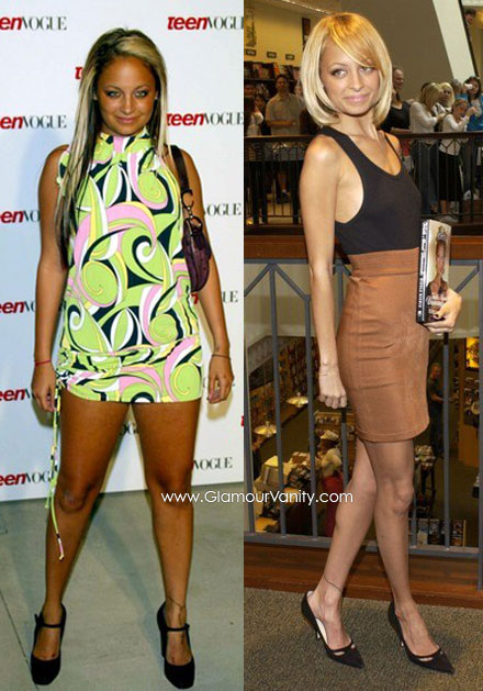 Nicole Richie's weight battle - fat and thin