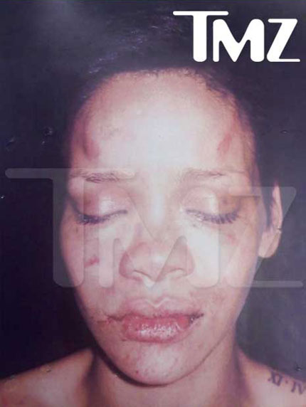 Rihanna's bruised face after Chris Brown'<br />
