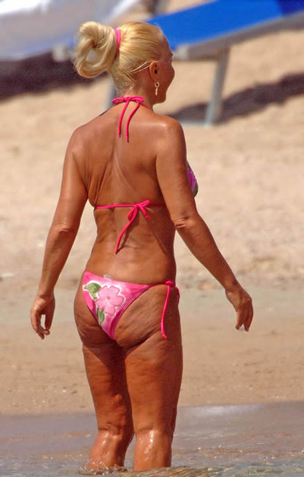 Donatella Versace's ugly cellulite