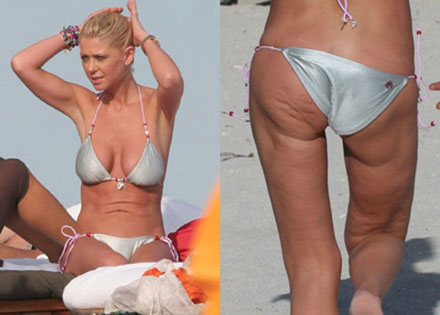 Tara Reid shows her cellulite